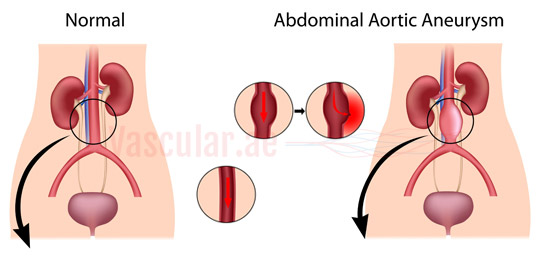 abdominal aortic aneurysm An abdominal aortic aneurysm is a weakened area of the aorta that bulges or expands find out more about treatment for abdominal aortic aneurysms at ohio state's heart and vascular center.