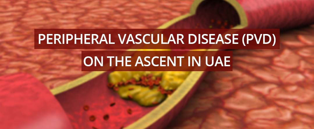 Peripheral Vascular Disease (PVD) on the ascent in UAE