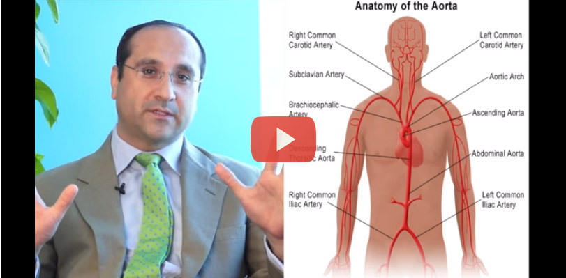 Aortic Aneurysm – Symptoms and Treatments