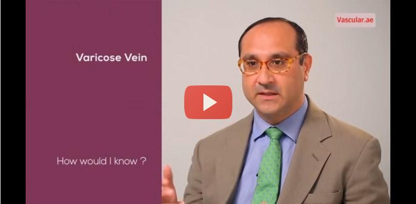 Varicose Vein and Minimally invasive Treatment