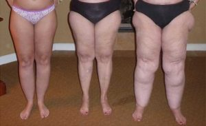 What-is-Lipedema